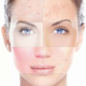 Rosacea, acne, pigmentfolt eltávolítása