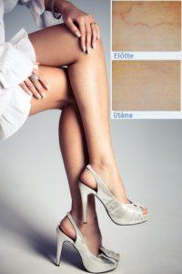 seprűvéna, seprűvéna kezelés, hajszálér, hajszálér kezelés