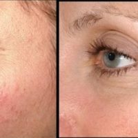 rosacea kezelés előtt és után